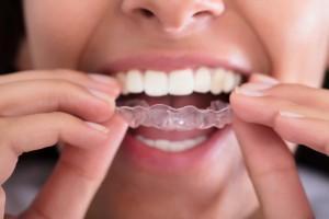 zakładanie nakładki wybielającej zęby